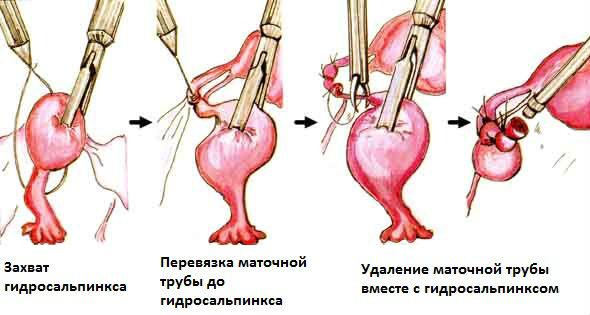 Лечение гидросальпинкса