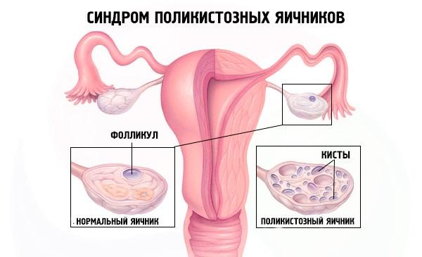 Поликистоз яичников
