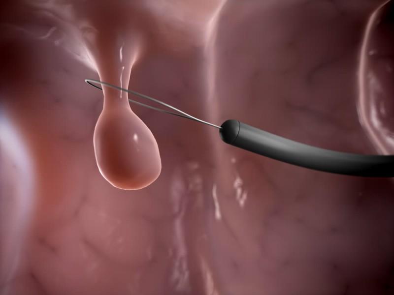 Удаление полипа в матке: как проходит операция